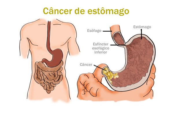 cancer_de_estomago